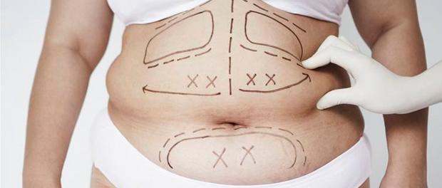 Co je obezita a jak se projevuje?
