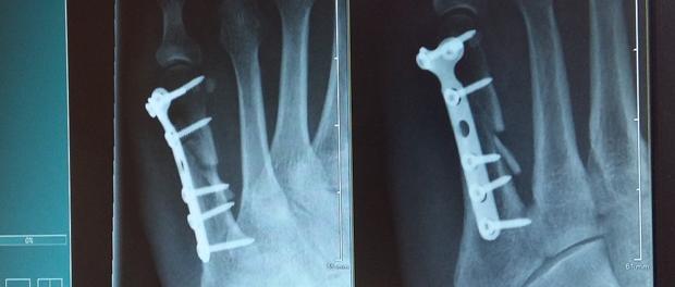 Zdravé kosti po celý život