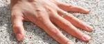 Suché ruce už vás nemusí trápit